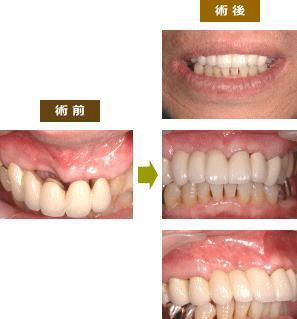 歯肉増大術とメタルボンドブリッジ画像